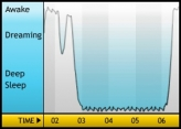 My sleep pattern
